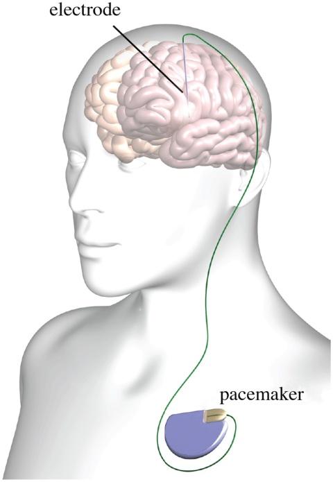 Typical_deep_brain_stimulation_setup